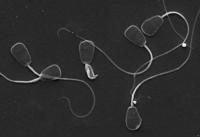 La consaguinidad aumenta el daño en el ADN de los espermatozoides