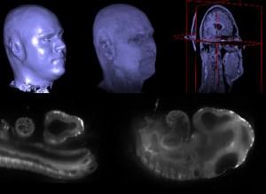Plataforma de procesamiento imágenes biomédicas