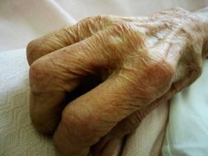 Melatonina y ejercicio contra el alzheimer