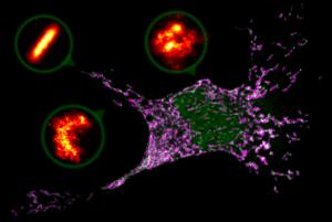 Imagen de microscopía confocal donde se observa una célula de mamífero entrando en apoptosis o suicidio celular. Las mitocondrias se muestran en magenta y la proteína Bax en verde, organizada en zonas donde las mitocondrias se están fragmentando. Los detalles o zooms son estructuras de Bax (en naranja) captadas por microscopía de superresolución en forma de anillos, arcos y líneas. / R. Salvador-Gallego