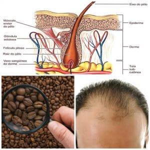 cafeina-crecimiento-cabello