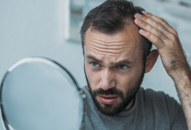 Soluciones para la alopecia