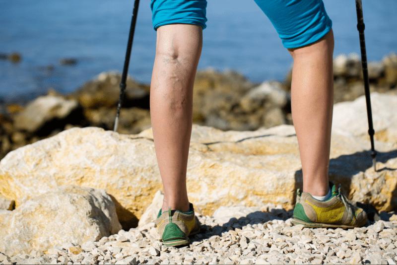 Eliminar varices sin cirugía es posible y es tendencia